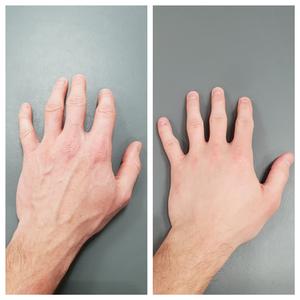 Dermal fillers for hands