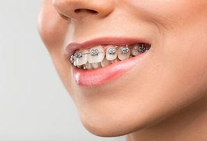bages-orthodontiste-leman.jpg