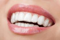 Highmoor-Dental-Invisalign-Invisible-Bra