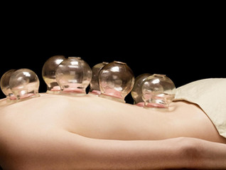 Cupping Therapy - Why you need to try it !