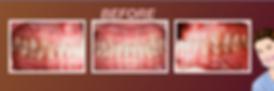 การจัดฟันดามอน