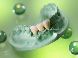 เคล็ดลับดีๆในการดูแลปากและฟัน ให้อยู่กับคุณไปนานๆ