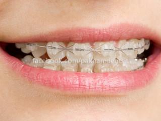 ประเภทของการดัดฟัน