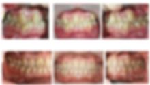 ดัดฟัน-copy.png