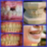 จัดฟันฟันหาย.jpg