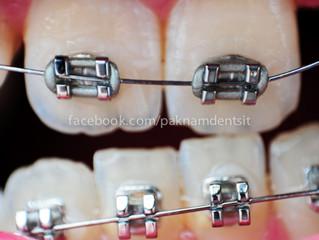 ข้อควรระวังและการดูแลสุขภาพฟันในระหว่างจัดฟัน