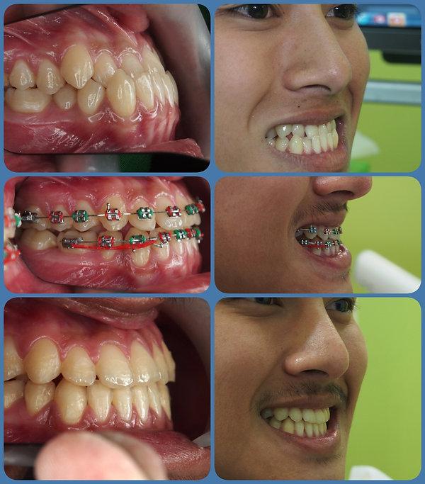 collage1111.jpg