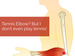 Tennis Elbow? But I don't even play tennis!