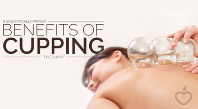 Cupping-Therapy-Image-Design-1.jpg