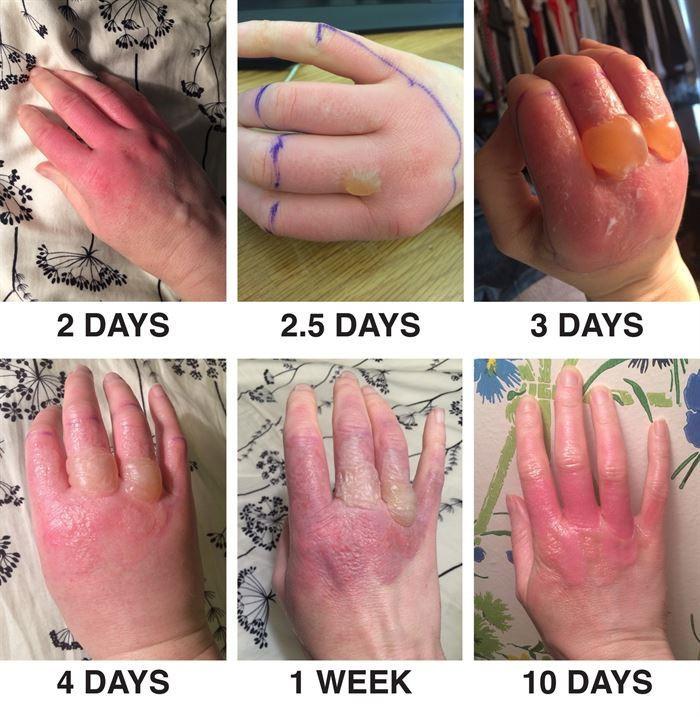 städa med citron bild dermatit
