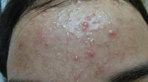 Microneedling vid acne bild före1
