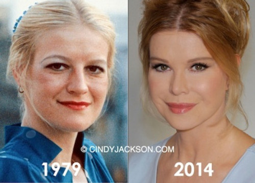 cindy_jackson_before_and_after bild