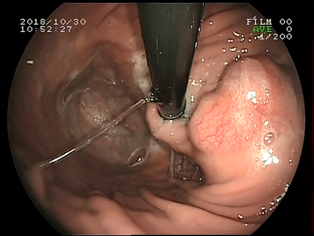 Gastroscopia en el perro. Diagnóstico de un tumor de estómago.