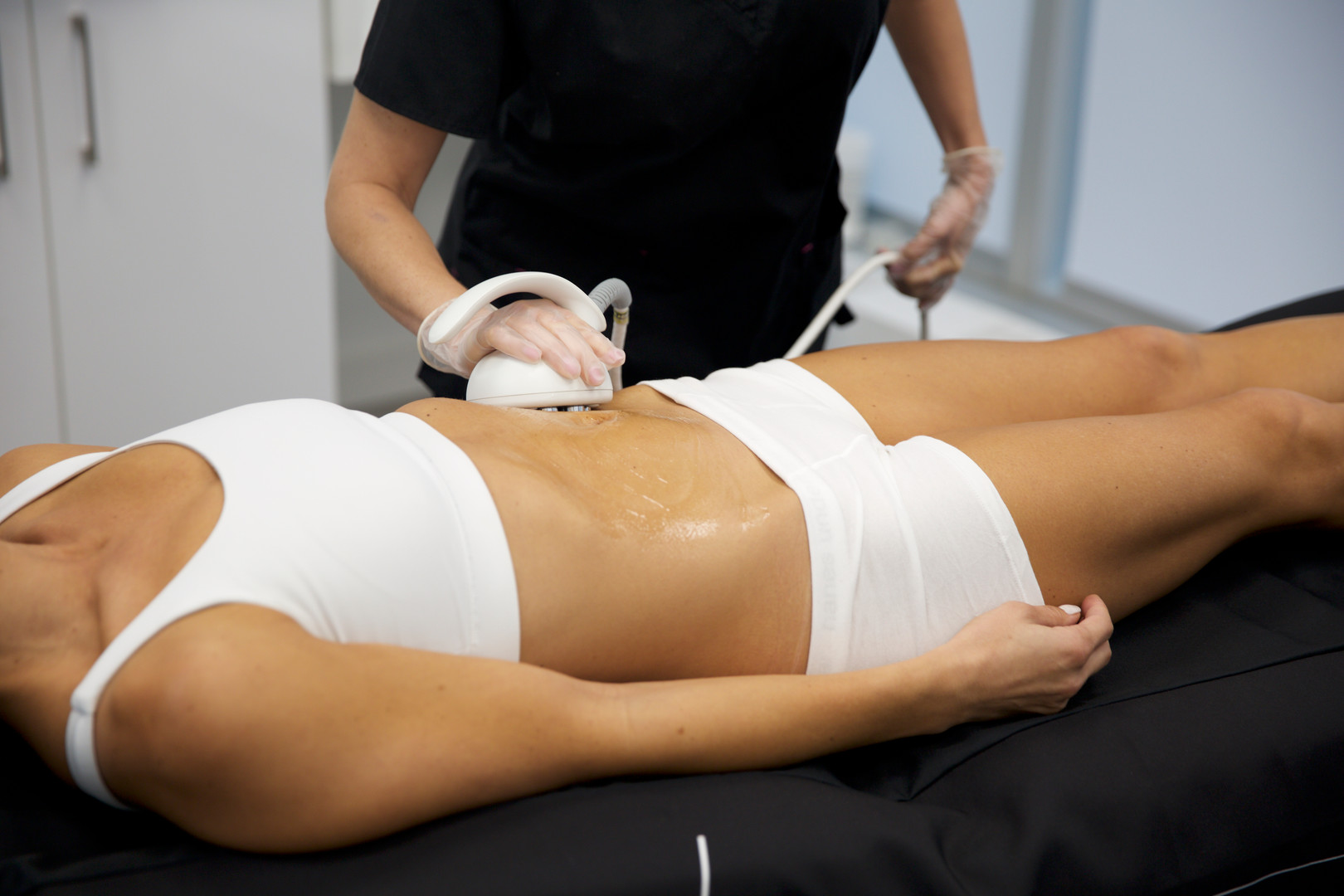 Octipolar Skin Tightening and Scar Reduction