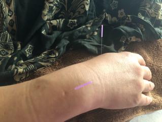 腱鞘炎の鍼治療