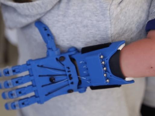 Protesi stampate in 3D: quando la tecnologia fa davvero la differenza