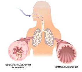 Сезон бронхиальной астмы. Как уберечься от обострений.
