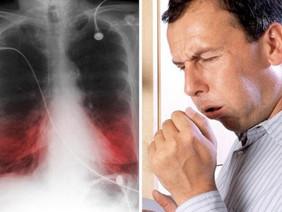 Хронические заболевания бронхо-легочной системы в условиях пандемии коронавируса