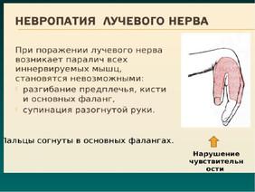 Клинический случай. Нейропатия левого лучевого нерва с парезом разгибателей кисти и пальцев. ЭРТ.