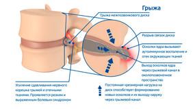 Спондилоартроз и грыжа или протрузия диска.