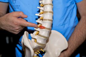 Лечение грыж и протрузий межпозвонковых дисков без операции