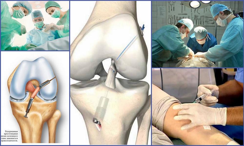 Операции по замене сустава не решает проблему