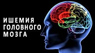 ishemiya-mozga.jpg