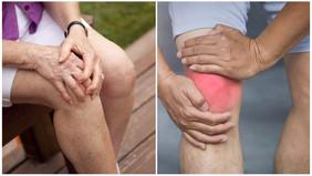 Клинический случай, лечение артроза, коленных суставов методом ЭРТ.