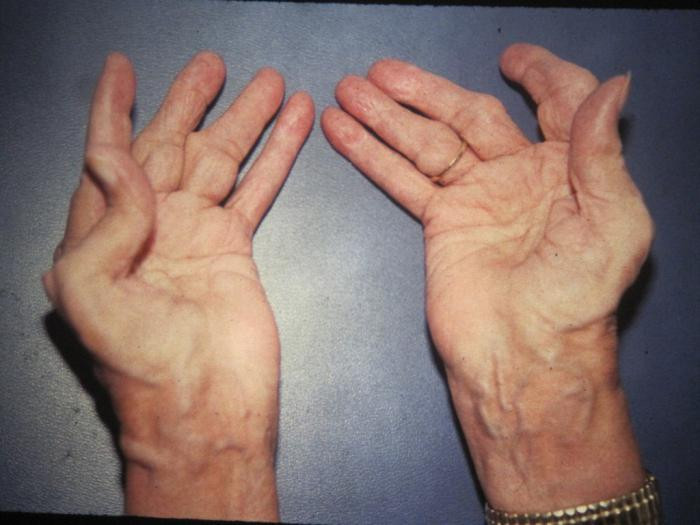 ревматоидный артрит, лечение ревматоидного артрита