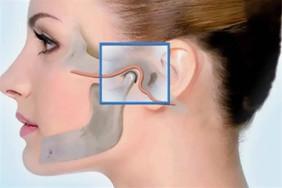 Лицевые боли: Артроз височно-нижнечелюстного сустава