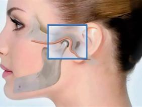 Лицевые боли:Артроз височно-нижнечелюстного сустава. Причины, распространенность, начальные симптомы