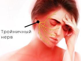 Невралгия тройничного нерва.