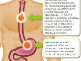 Клинический случай лечения Гастроэзофагальной рефлюксной болезни(ГЭРБ)методом электрорефлексотерапии