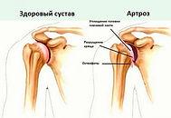 osteoartroz-plecha.jpg