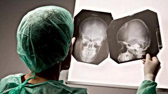 рентген мозга.jpeg