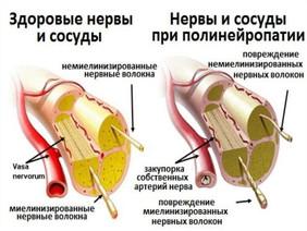 Полинейропатия.