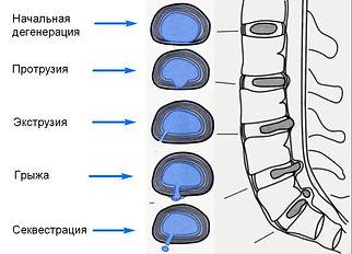 chem-otlichaetsya-protruziya-ot-gryzhi-m
