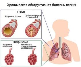 ХОБЛ. Симптомы и варианты лечения.
