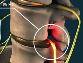 Синдром смежного уровня позвоночника после операции на позвоночнике.