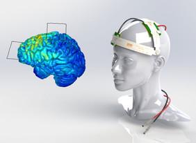 ТЭС-терапия, память и когнитивные способности и заболевания нервной системы