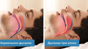 Апноэ во сне. Симптомы и лечение.