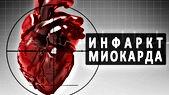 инфаркт миакарда