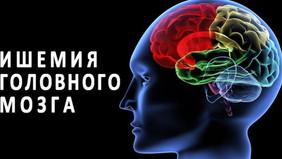 Хроническая ишемия головного мозга.