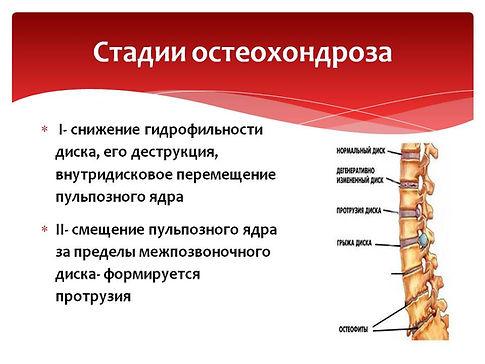 1 и 2 стадии остеохондроза.jpg
