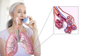 11 декабря - Всемирный день больного бронхиальной астмой.
