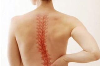 Сколиоз и боли в спине. Правильная осанка- залог успеха!