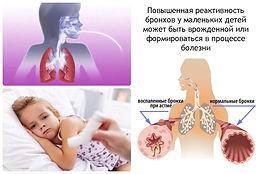 бронхиальная астм3.jpg