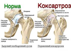Коксартроз (артроз тазобедренного сустава).
