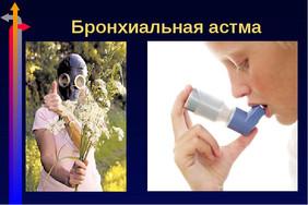 Бронхиальная астма. Лечить с лекарствами или без. Статистика