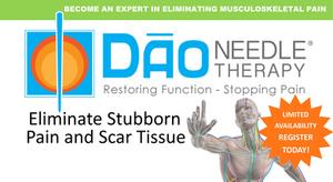 Acupuncture technique that eliminate stubborn pain and scar tissues